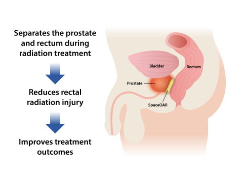 SpaceOAR® System – Rectal Protection for Prostate Cancer Radiation Therapy Patients