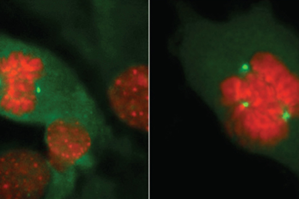 Thomas Ried/NCI Center for Cancer Research The study of normal cell division in a breast (left) versus the mutation BRCA1 or BRCA2 (right) has expanded as Harvard researchers examine levels of Ki67, a molecular marker in healthy breast tissue that can predict a woman's risk of getting breast cancer.