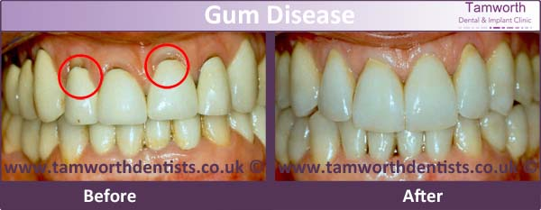 gum-disease-before-and-after-1