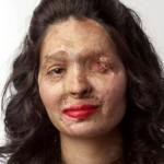 Reshma Quereshi-After